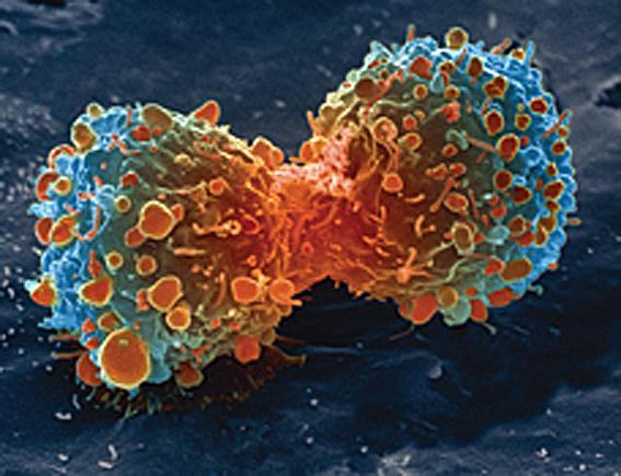 Cancer cell division / creative commons www.nih.gov