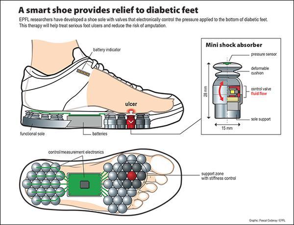 Diabetes A Smart Shoe To Help Reduce Amputations